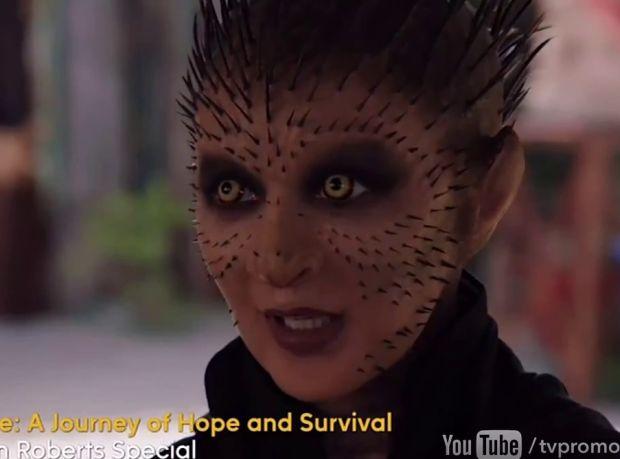 Trailer de l'épisode 2×20 – Scars